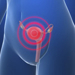 UK researchers develop new, improved ovarian cancer test