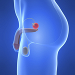 Amgen's Xgeva delays prostate cancer spread to bone