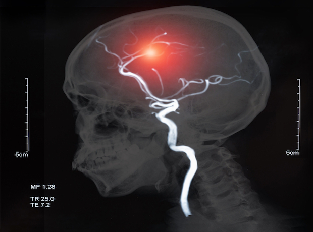 Thumbnail image for Charity warns of 'catastrophic' effect of COVID-19 on stroke research