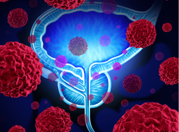 Thumbnail image for Novartis says its radioligand therapy boosts health-related quality of life