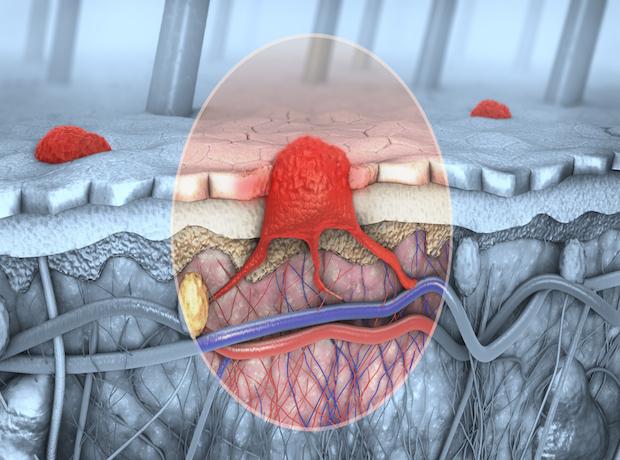 Thumbnail image for BMS' Opdivo plus LAG-3 antibody relatlimab show promise in melanoma