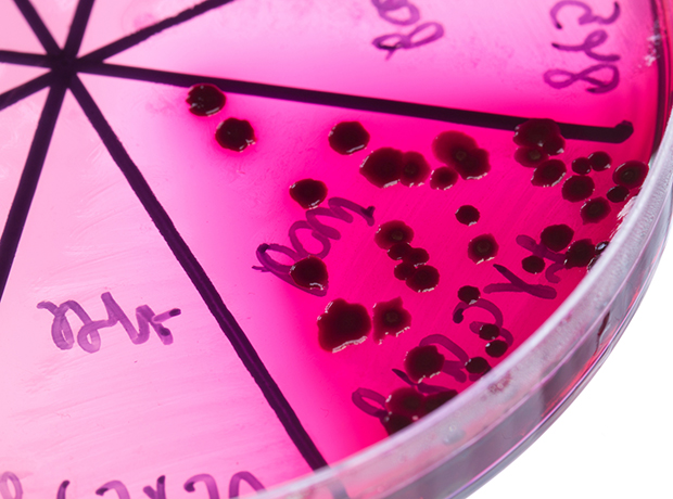 Thumbnail image for Antibiotic Research UK launches small research grants programme